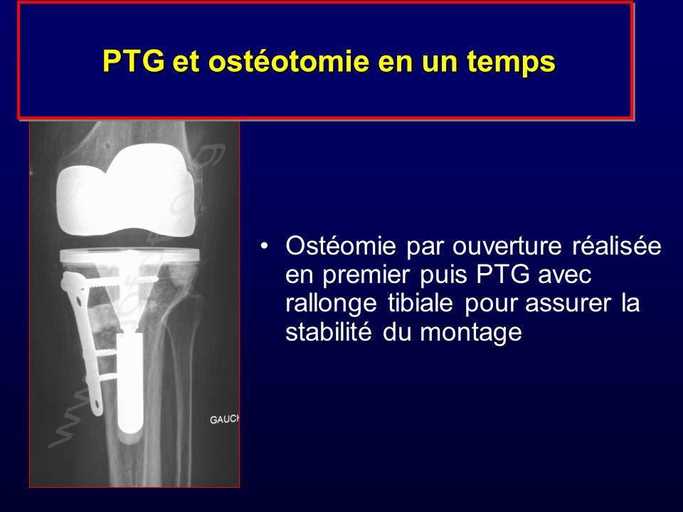 Ostéomie par ouverture réalisée en premier puis PTG avec rallonge tibiale pour assurer la stabilité du montage PTG et ostéotomie en un temps PTG et ostéotomie en un temps