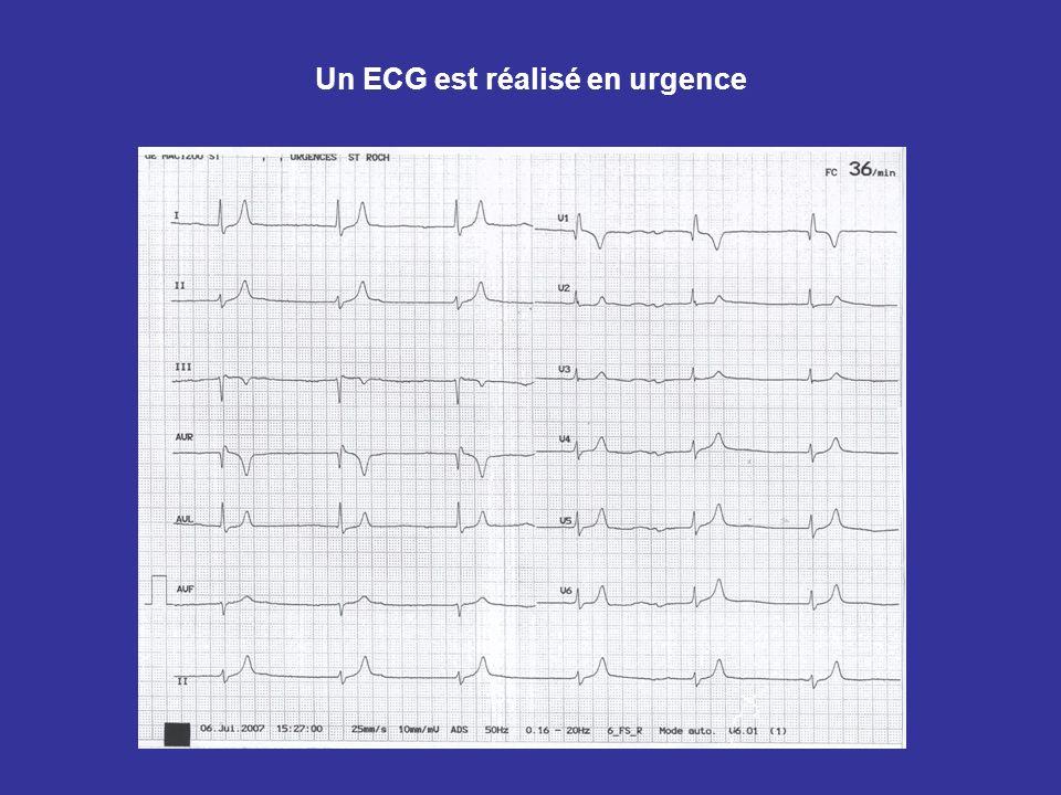 Un ECG est réalisé en urgence