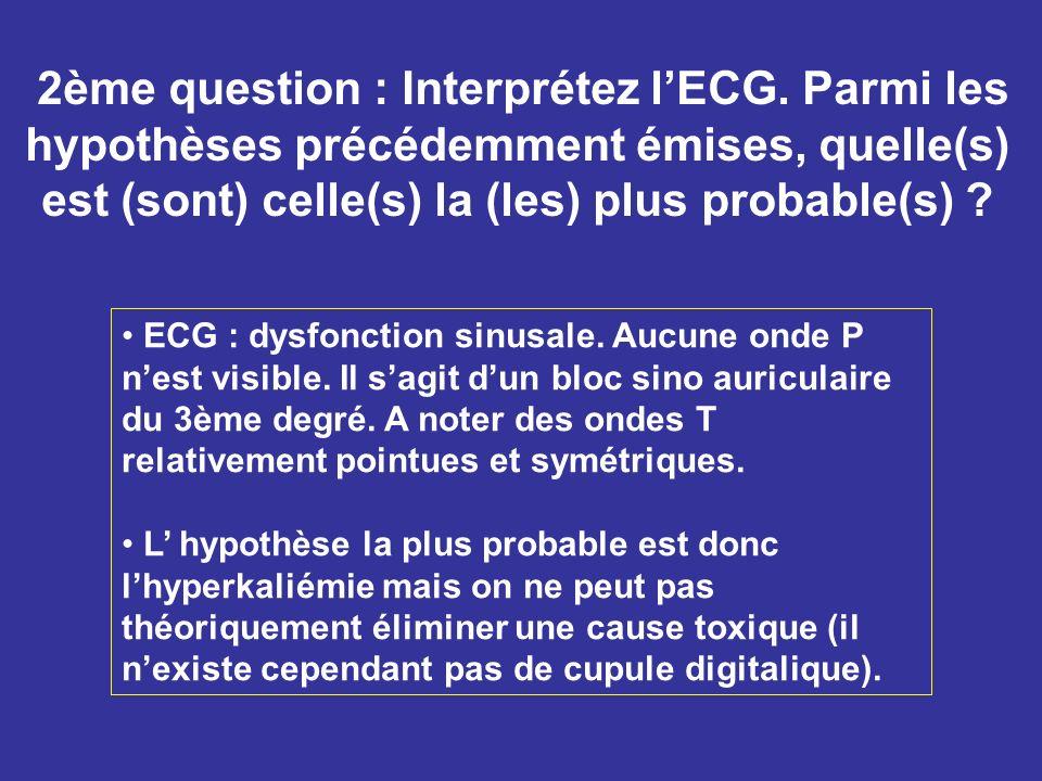2ème question : Interprétez lECG. Parmi les hypothèses précédemment émises, quelle(s) est (sont) celle(s) la (les) plus probable(s) ? ECG : dysfonctio