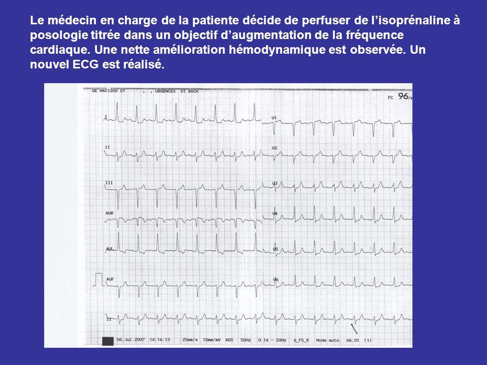 Le médecin en charge de la patiente décide de perfuser de lisoprénaline à posologie titrée dans un objectif daugmentation de la fréquence cardiaque. U