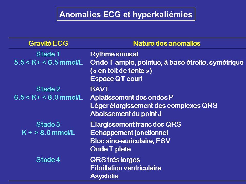 Gravité ECGNature des anomalies Stade 1 5.5 < K+ < 6.5 mmol/L Rythme sinusal Onde T ample, pointue, à base étroite, symétrique (« en toit de tente »)