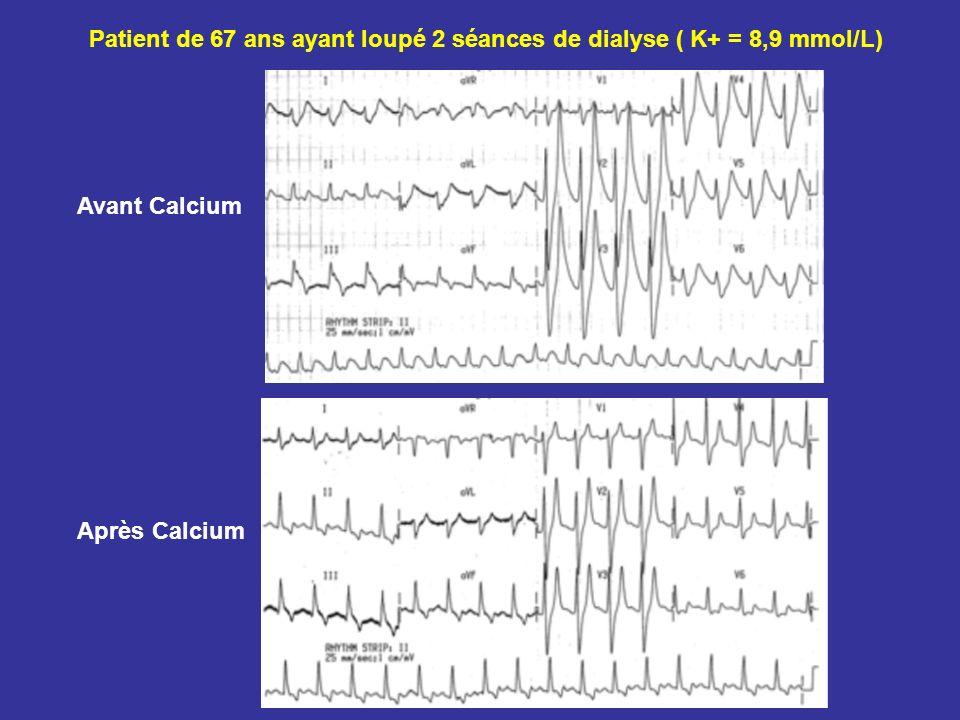 Patient de 67 ans ayant loupé 2 séances de dialyse ( K+ = 8,9 mmol/L) Avant Calcium Après Calcium