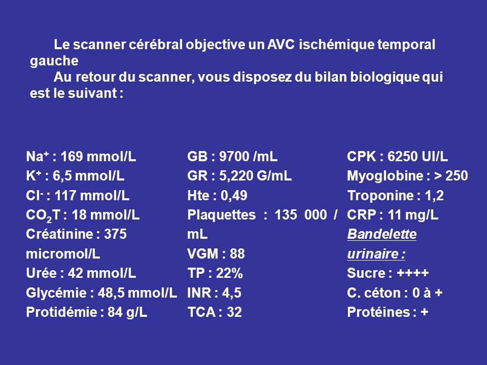 Le scanner cérébral objective un AVC ischémique temporal gauche Au retour du scanner, vous disposez du bilan biologique qui est le suivant : Na + : 16