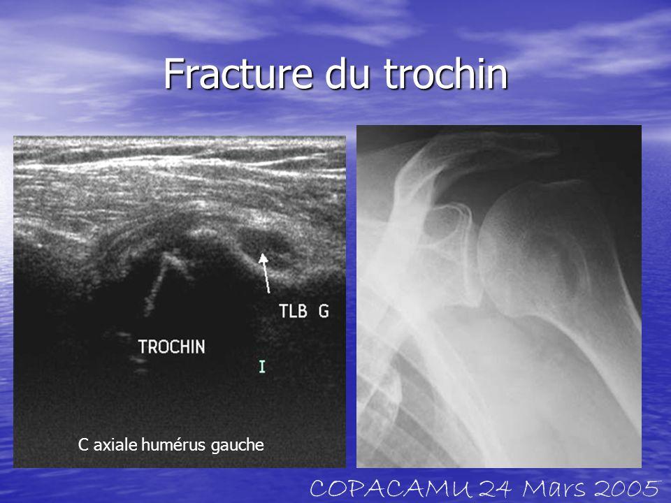 Clin : chute sur le genou en flexion hémarthrose Luxation patellaire spontanément réductible COPACAMU 24 Mars 2005