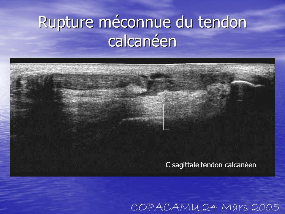 Rupture méconnue du tendon calcanéen C sagittale tendon calcanéen COPACAMU 24 Mars 2005