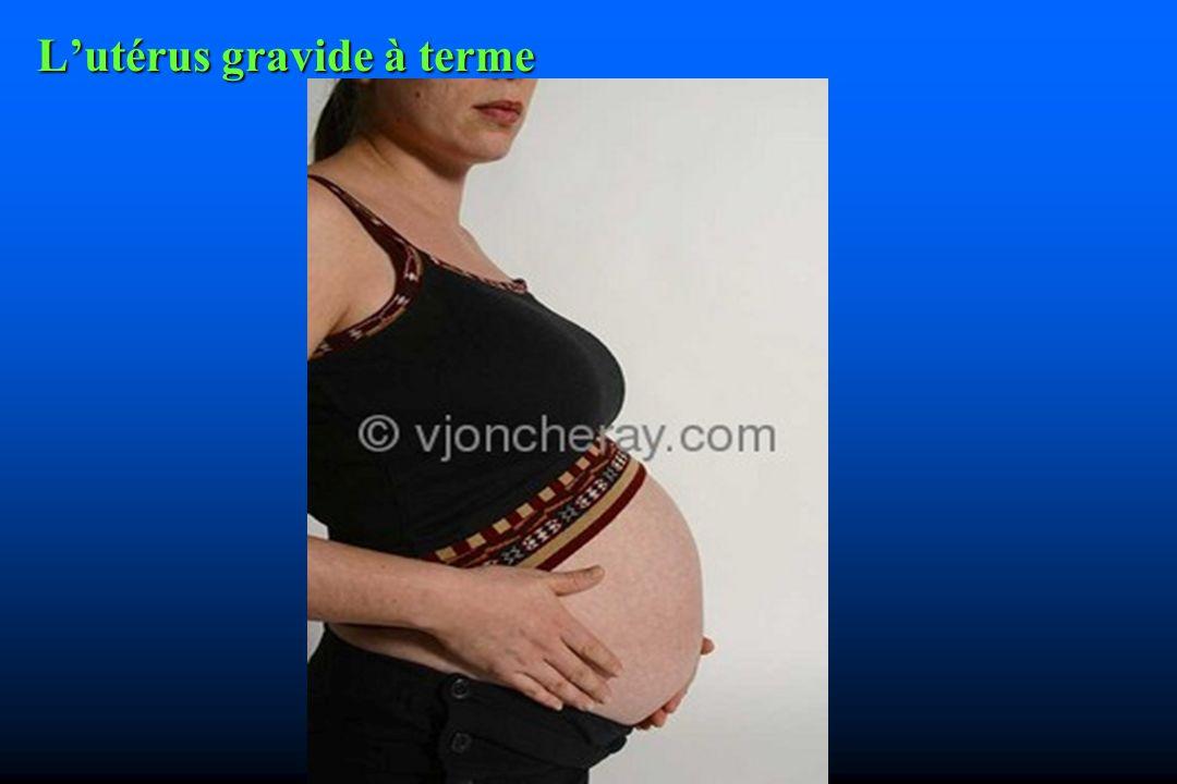 Lutérus gravide à terme