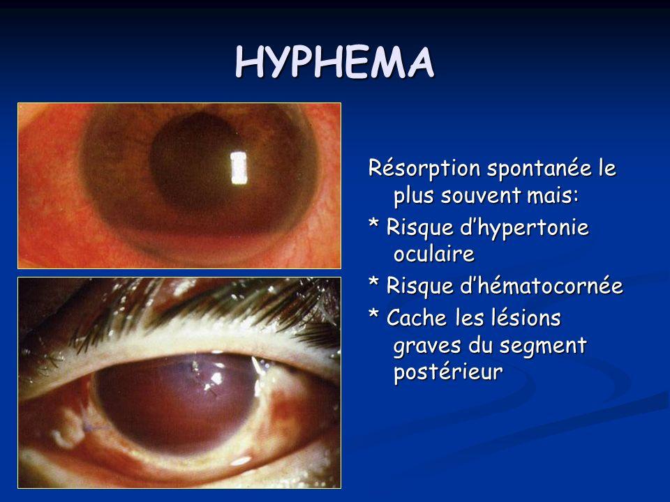 HYPHEMA Résorption spontanée le plus souvent mais: * Risque dhypertonie oculaire * Risque dhématocornée * Cache les lésions graves du segment postérie
