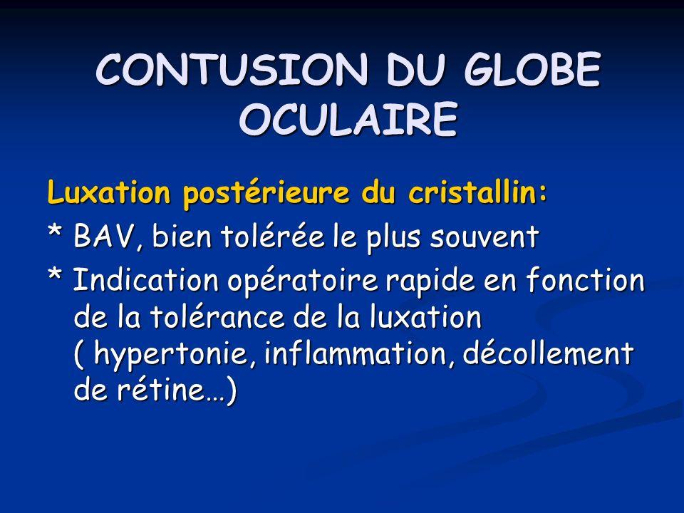 CONTUSION DU GLOBE OCULAIRE Luxation postérieure du cristallin: * BAV, bien tolérée le plus souvent * Indication opératoire rapide en fonction de la t