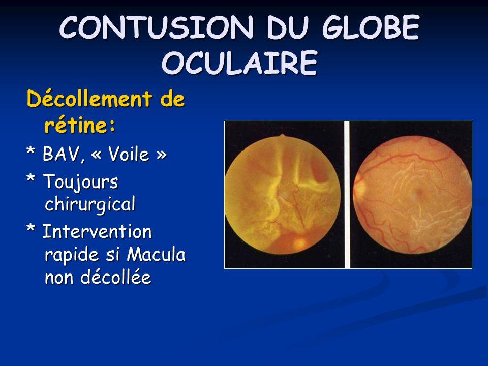 CONTUSION DU GLOBE OCULAIRE Décollement de rétine: * BAV, « Voile » * Toujours chirurgical * Intervention rapide si Macula non décollée