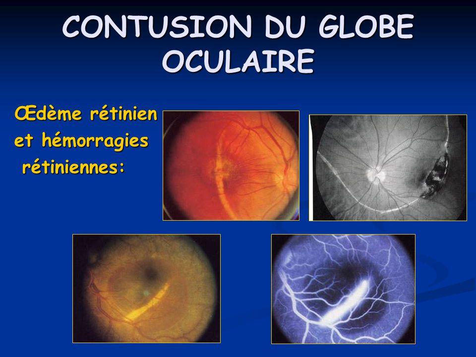 CONTUSION DU GLOBE OCULAIRE Œdème rétinien et hémorragies rétiniennes: rétiniennes: