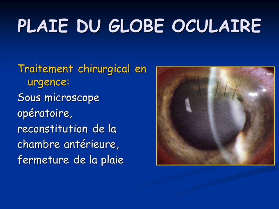 PLAIE DU GLOBE OCULAIRE Traitement chirurgical en urgence: Sous microscope opératoire, reconstitution de la chambre antérieure, fermeture de la plaie