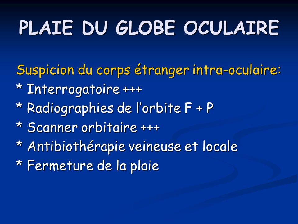 PLAIE DU GLOBE OCULAIRE Suspicion du corps étranger intra-oculaire: * Interrogatoire +++ * Radiographies de lorbite F + P * Scanner orbitaire +++ * An