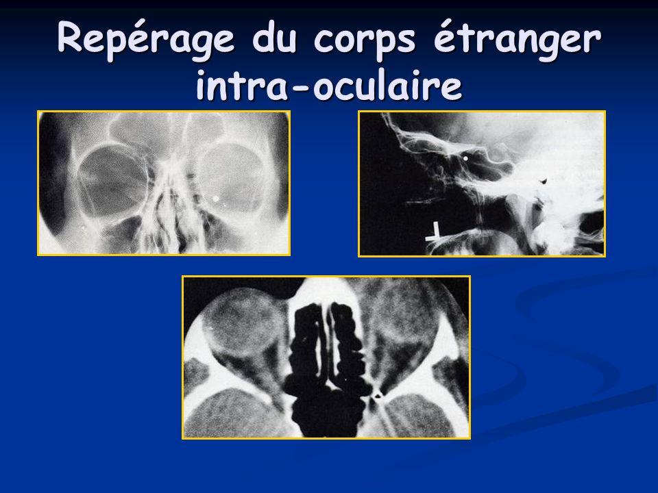 Repérage du corps étranger intra-oculaire