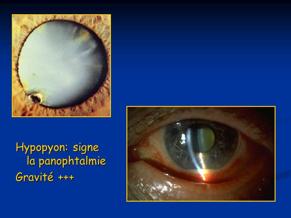 Hypopyon: signe la panophtalmie Gravité +++