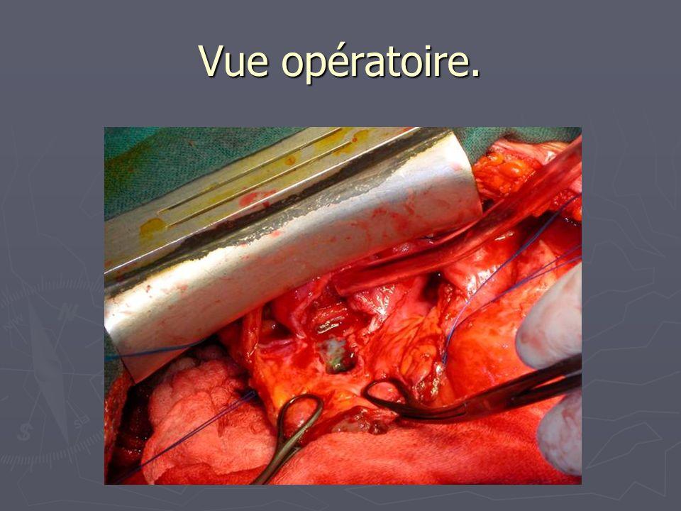Vue opératoire.