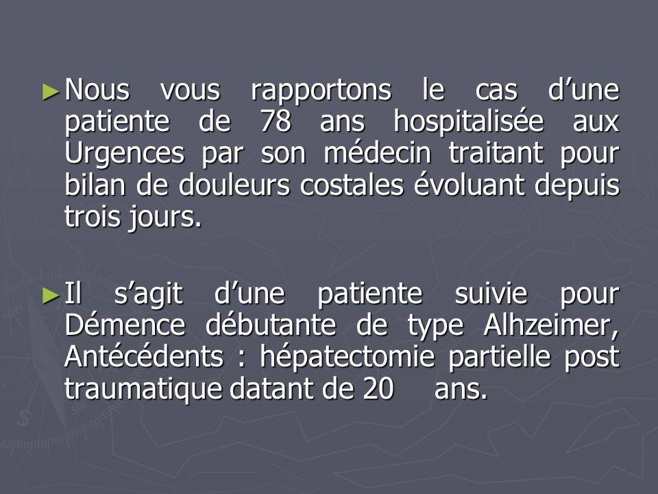 Nous vous rapportons le cas dune patiente de 78 ans hospitalisée aux Urgences par son médecin traitant pour bilan de douleurs costales évoluant depuis