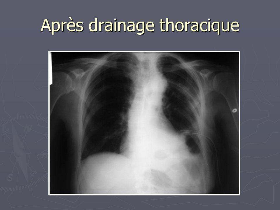 Après drainage thoracique