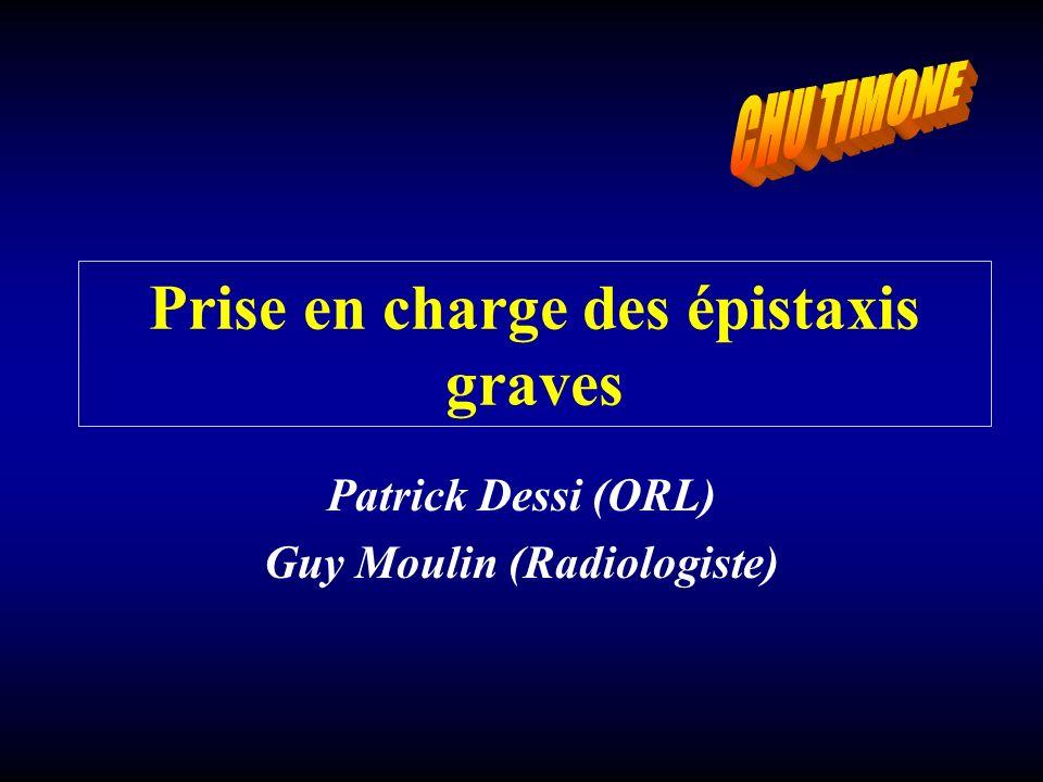Patrick Dessi (ORL) Guy Moulin (Radiologiste) Prise en charge des épistaxis graves