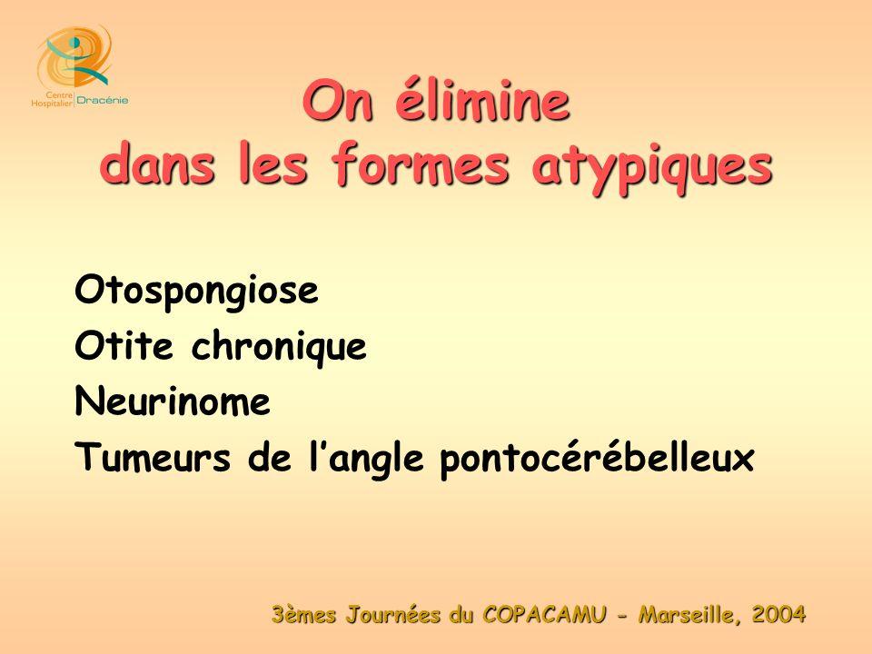 3èmes Journées du COPACAMU - Marseille, 2004 Otospongiose Otite chronique Neurinome Tumeurs de langle pontocérébelleux On élimine dans les formes atyp