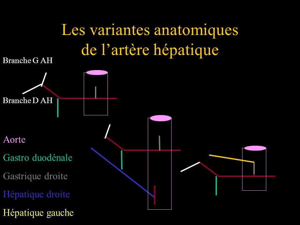Les variantes anatomiques de lartère hépatique Aorte Gastro duodénale Gastrique droite Hépatique droite Hépatique gauche Branche G AH Branche D AH