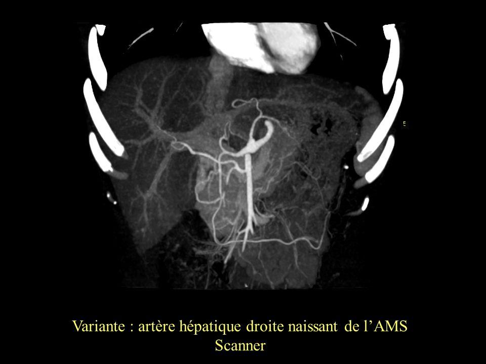 Variante : artère hépatique droite naissant de lAMS Scanner