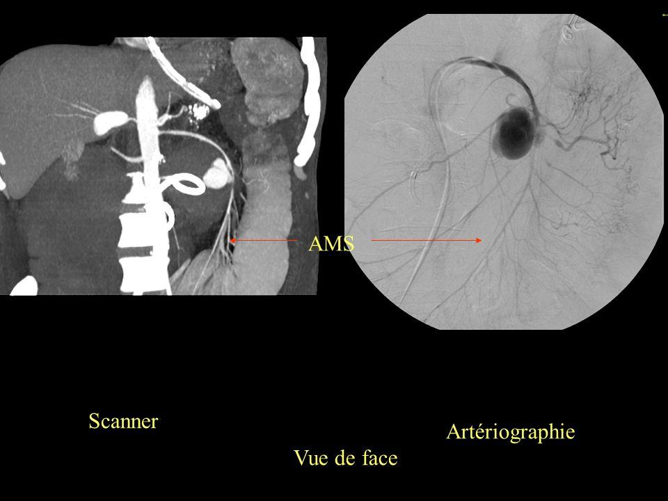 Scanner Artériographie Vue de face AMS