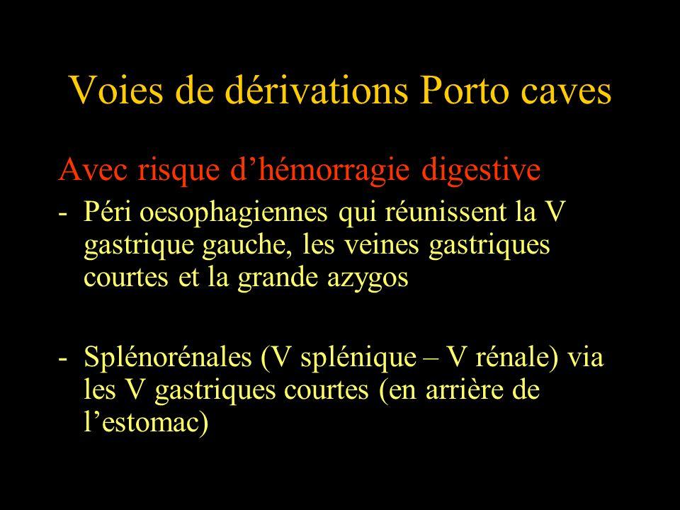 Voies de dérivations Porto caves Avec risque dhémorragie digestive -Péri oesophagiennes qui réunissent la V gastrique gauche, les veines gastriques co