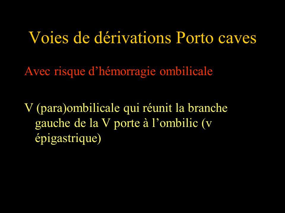 Voies de dérivations Porto caves Avec risque dhémorragie ombilicale V (para)ombilicale qui réunit la branche gauche de la V porte à lombilic (v épigas