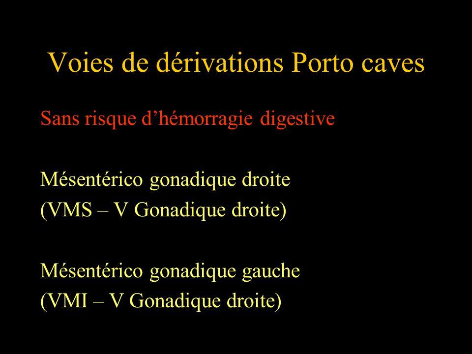 Voies de dérivations Porto caves Sans risque dhémorragie digestive Mésentérico gonadique droite (VMS – V Gonadique droite) Mésentérico gonadique gauch
