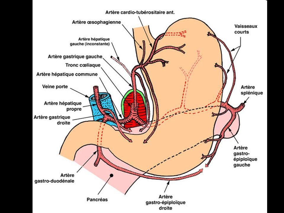 Veines et hémorragies digestives Une hyperpression dans le réseau porte peut provoquer une hémorragie digestive au niveau des anastomoses porto-cave Les anastomoses porto cave sont alors les seules voies de drainage du flux portal.