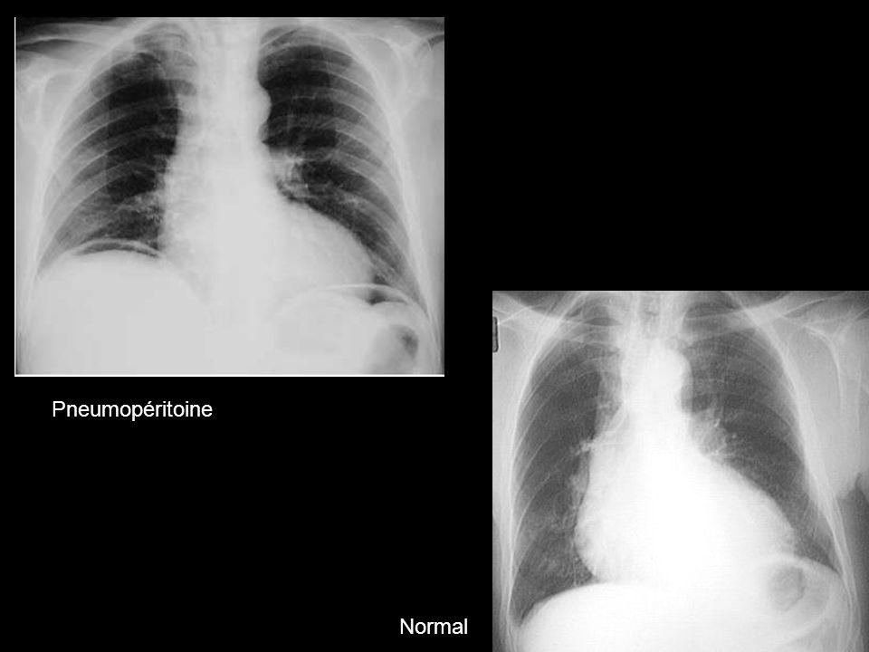 Pneumopéritoine Normal