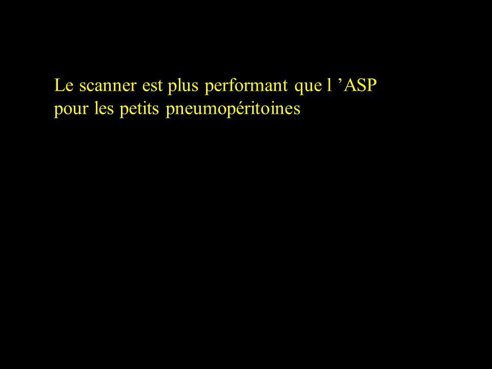 REMARQUES Le scanner est plus performant que l ASP pour les petits pneumopéritoines