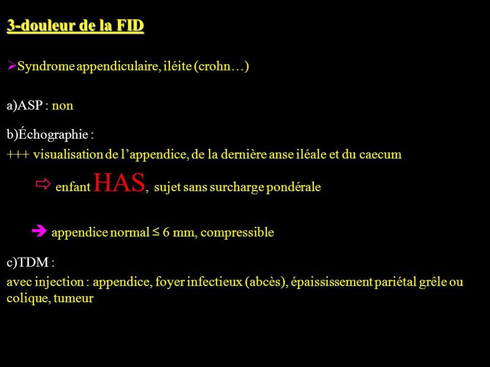 3-douleur de la FID Syndrome appendiculaire, iléite (crohn…) a)ASP : non b)Échographie : +++ visualisation de lappendice, de la dernière anse iléale e