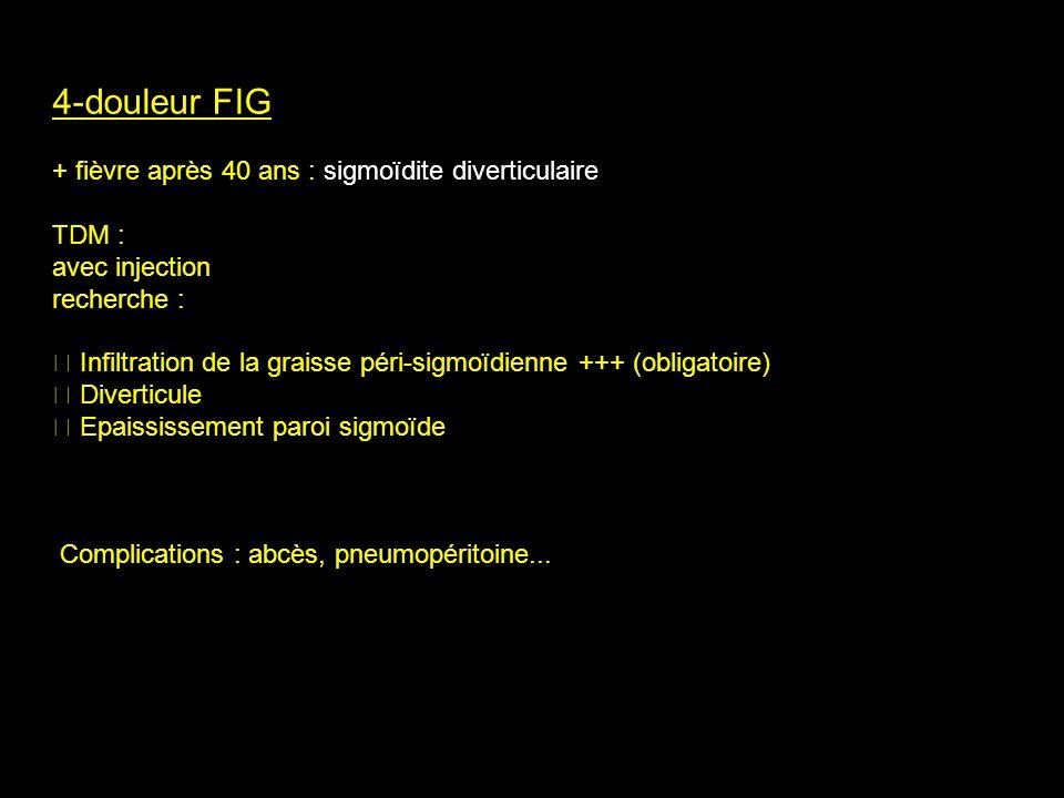 4-douleur FIG + fièvre après 40 ans : sigmoïdite diverticulaire TDM : avec injection recherche : Infiltration de la graisse péri-sigmoïdienne +++ (obl
