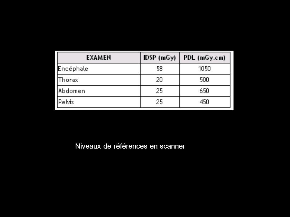 Niveaux de références en scanner