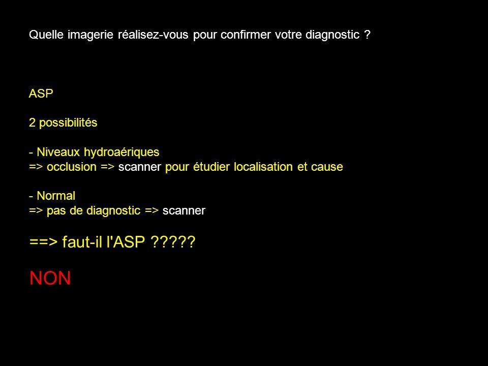 Quelle imagerie réalisez-vous pour confirmer votre diagnostic ? ASP 2 possibilités - Niveaux hydroaériques => occlusion => scanner pour étudier locali