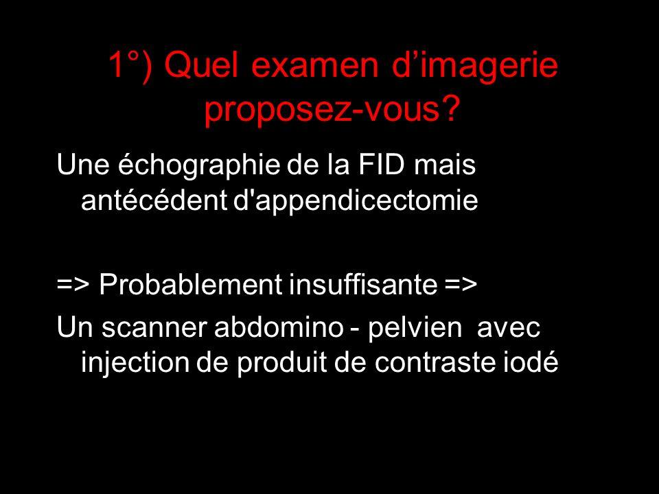 1°) Quel examen dimagerie proposez-vous? Une échographie de la FID mais antécédent d'appendicectomie => Probablement insuffisante => Un scanner abdomi