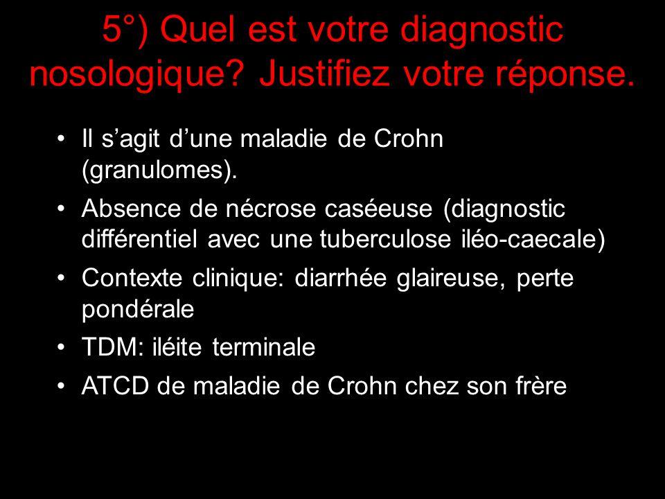 Il sagit dune maladie de Crohn (granulomes). Absence de nécrose caséeuse (diagnostic différentiel avec une tuberculose iléo-caecale) Contexte clinique