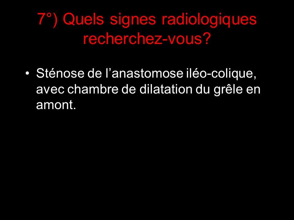 7°) Quels signes radiologiques recherchez-vous? Sténose de lanastomose iléo-colique, avec chambre de dilatation du grêle en amont.