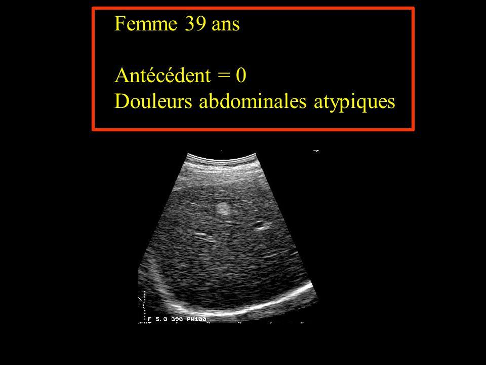 Femme 39 ans Antécédent = 0 Douleurs abdominales atypiques