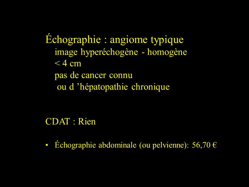Échographie : angiome typique image hyperéchogène - homogène < 4 cm pas de cancer connu ou d hépatopathie chronique CDAT : Rien Échographie abdominale
