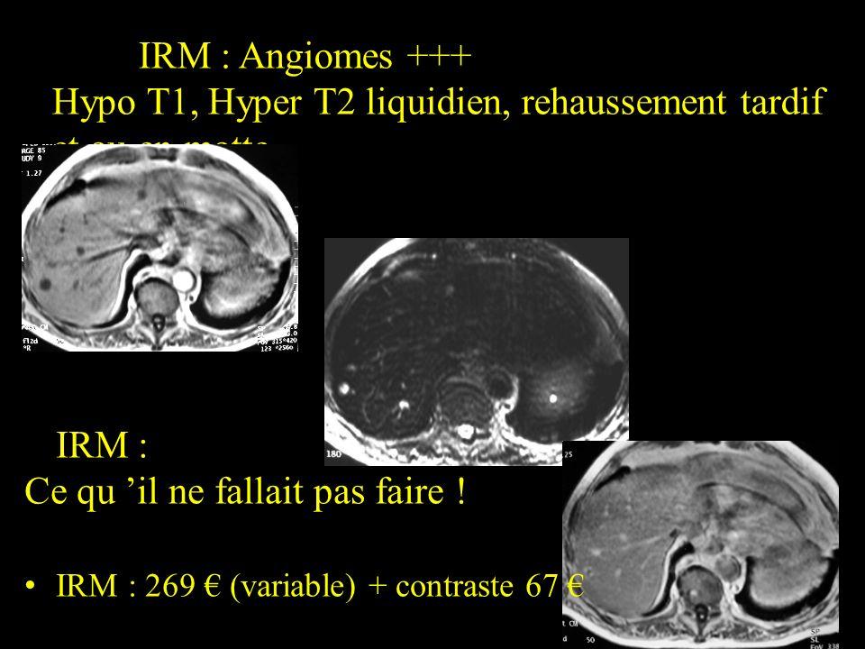 IRM : Angiomes +++ Hypo T1, Hyper T2 liquidien, rehaussement tardif et ou en motte IRM : Ce qu il ne fallait pas faire ! IRM : 269 (variable) + contra