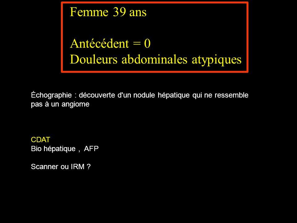 Femme 39 ans Antécédent = 0 Douleurs abdominales atypiques Échographie : découverte d'un nodule hépatique qui ne ressemble pas à un angiome CDAT Bio h