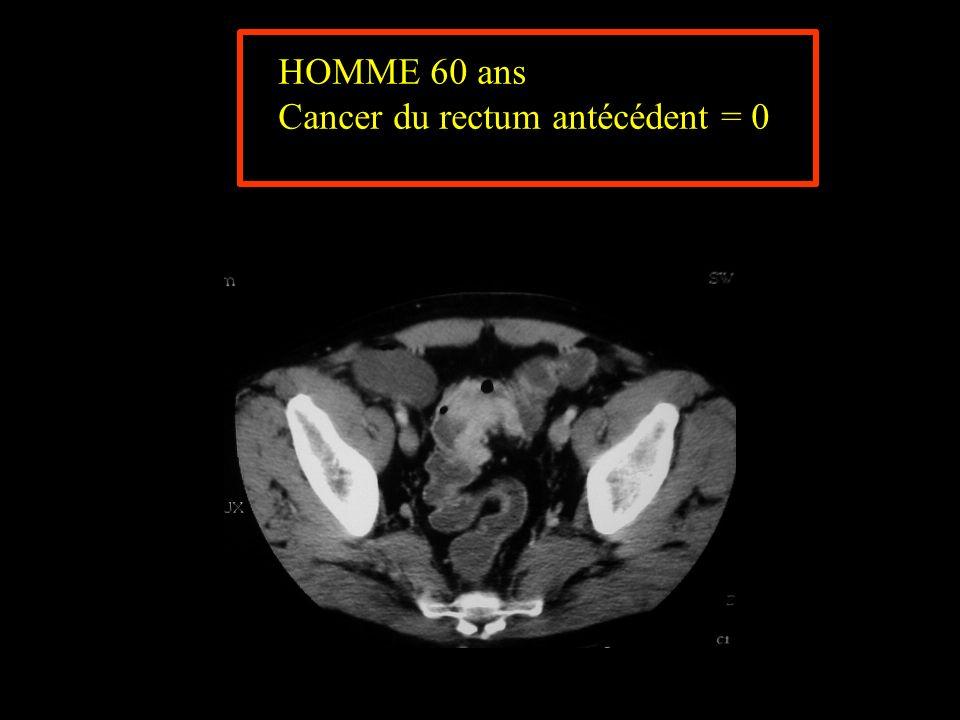 HOMME 60 ans Cancer du rectum antécédent = 0