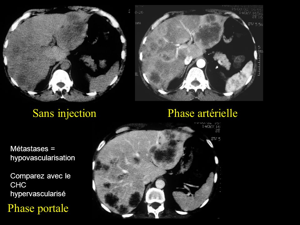 Sans injectionPhase artérielle Phase portale Métastases = hypovascularisation Comparez avec le CHC hypervascularisé