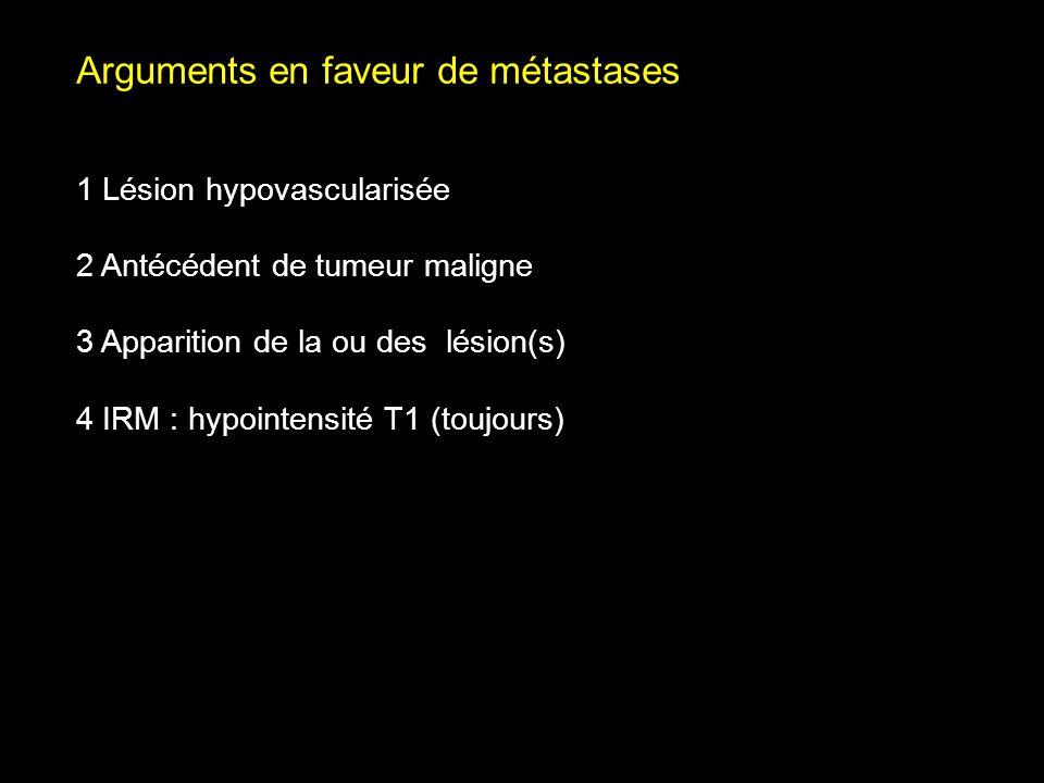 Arguments en faveur de métastases 1 Lésion hypovascularisée 2 Antécédent de tumeur maligne 3 Apparition de la ou des lésion(s) 4 IRM : hypointensité T