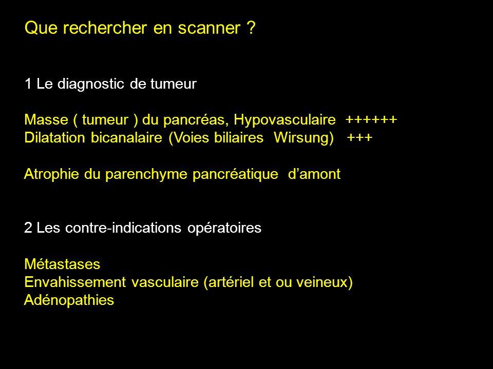 Que rechercher en scanner ? 1 Le diagnostic de tumeur Masse ( tumeur ) du pancréas, Hypovasculaire ++++++ Dilatation bicanalaire (Voies biliaires Wirs
