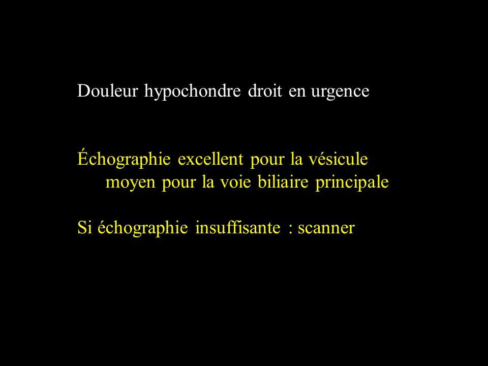 Douleur hypochondre droit en urgence Échographie excellent pour la vésicule moyen pour la voie biliaire principale Si échographie insuffisante : scann