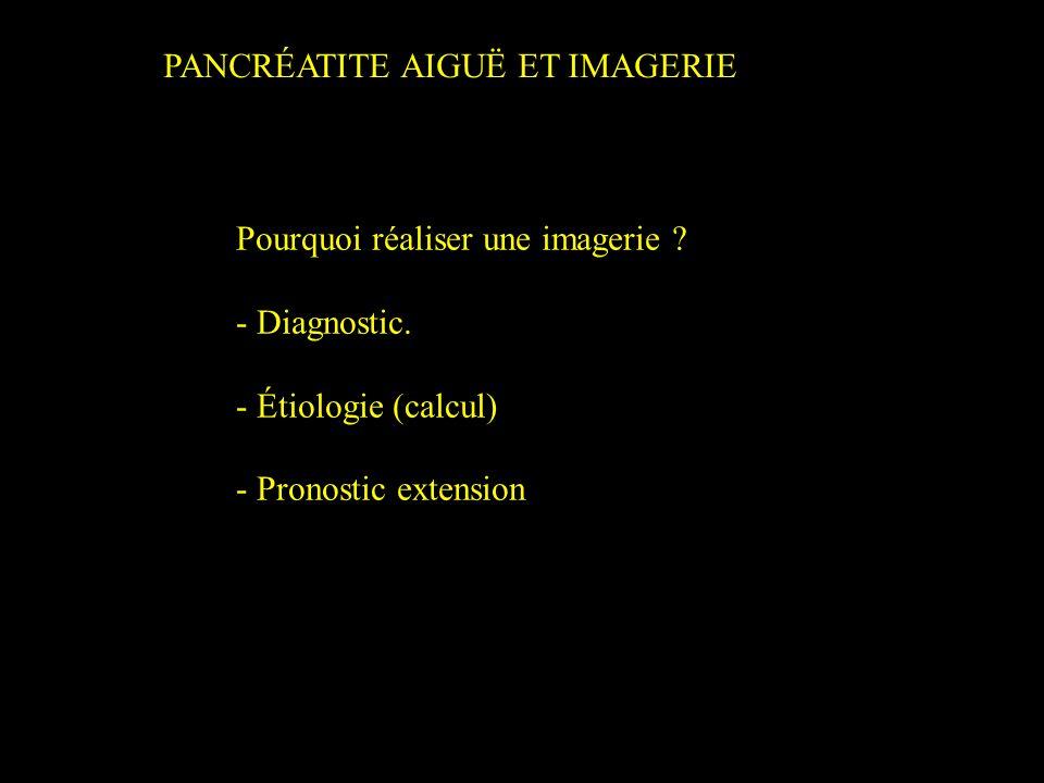 PANCRÉATITE AIGUË ET IMAGERIE Pourquoi réaliser une imagerie ? - Diagnostic. - Étiologie (calcul) - Pronostic extension
