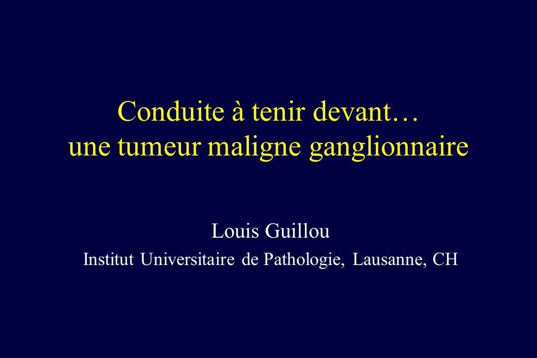 Conduite à tenir devant… une tumeur maligne ganglionnaire Louis Guillou Institut Universitaire de Pathologie, Lausanne, CH